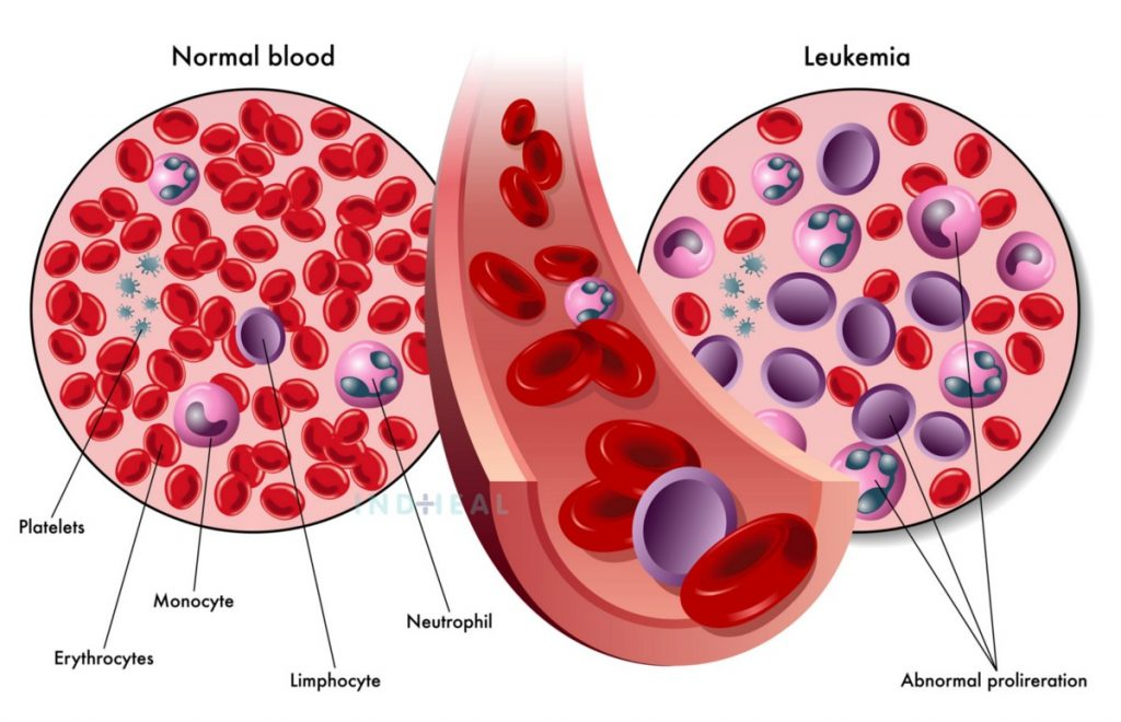How Does Chronic Myeloid Leukaemia Develop-CML Develop?