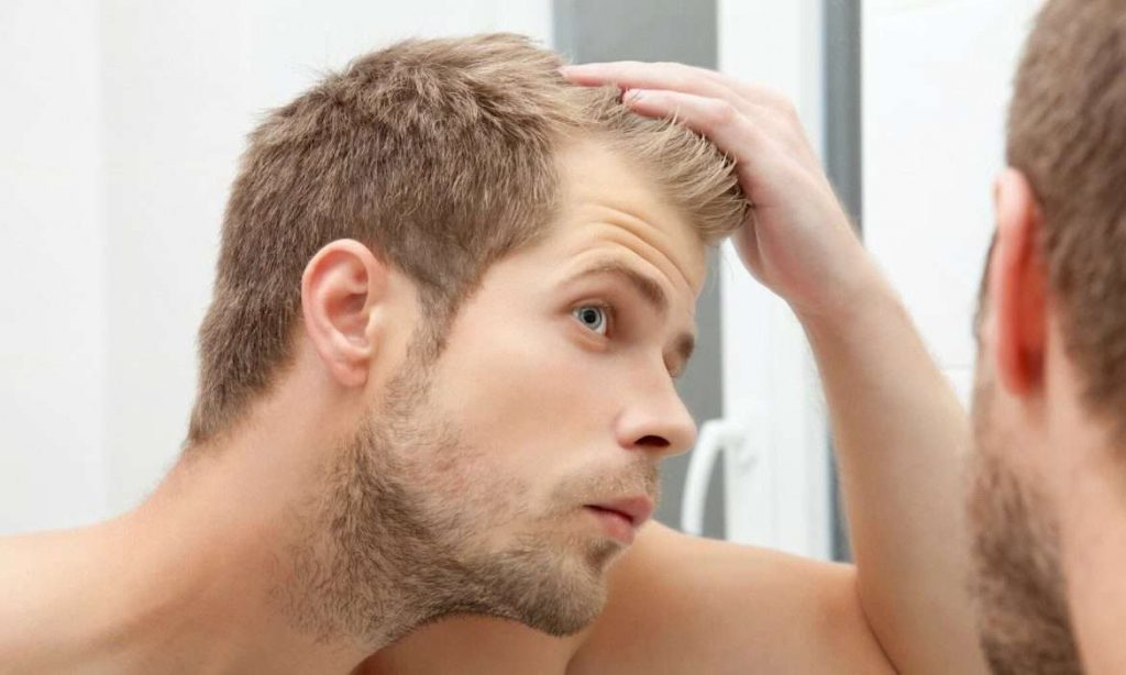 How a Hair Transplant Can Change Your Life