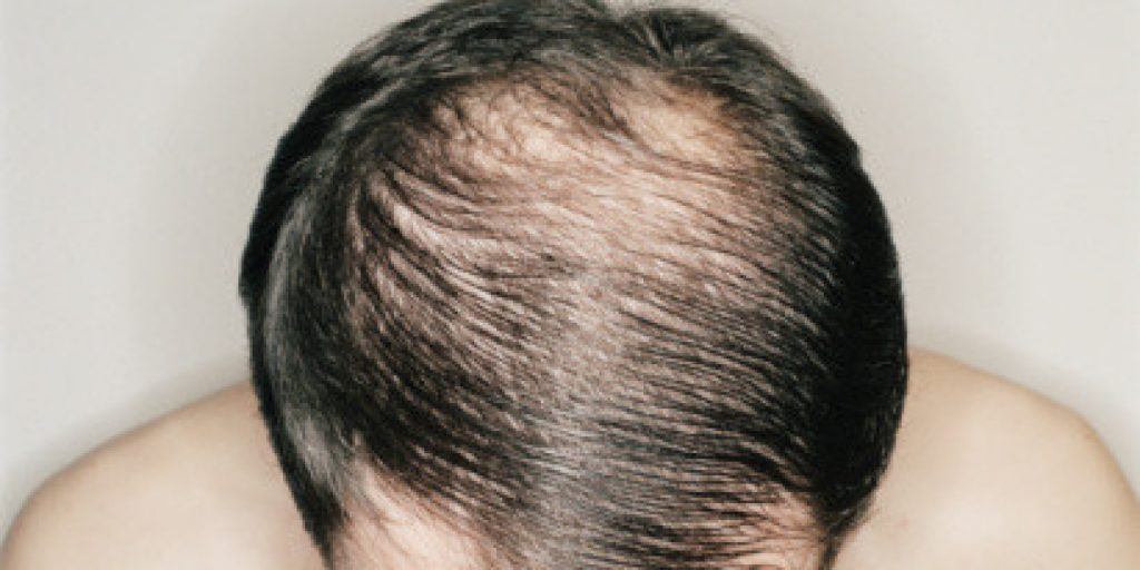 How to Choose The Best Clinics For Hair Transplant in Bhubaneswar