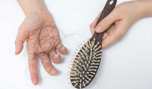 What To Do If Oozing Occurs After Hair Transplant