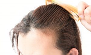 What To Expect From FUT Hair Transplant
