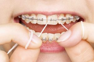 Foods to Avoid While You Have Braces