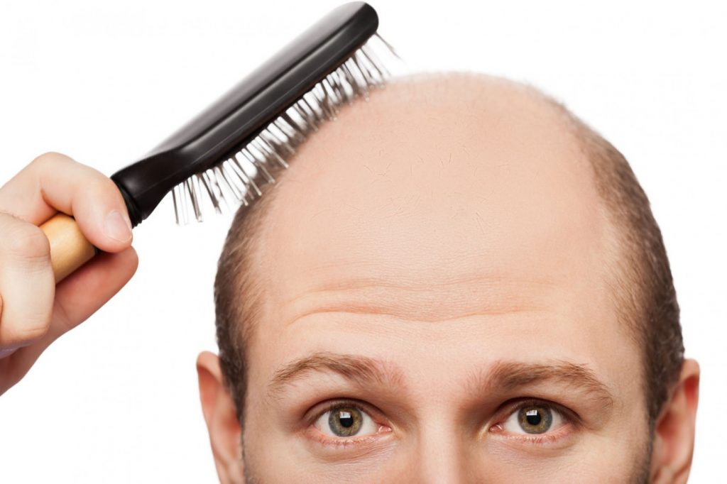Generic Propecia to Treat Baldness in Men