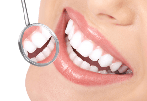 Regain Lost Teeth With Professional Dental Implants in Raleigh NC