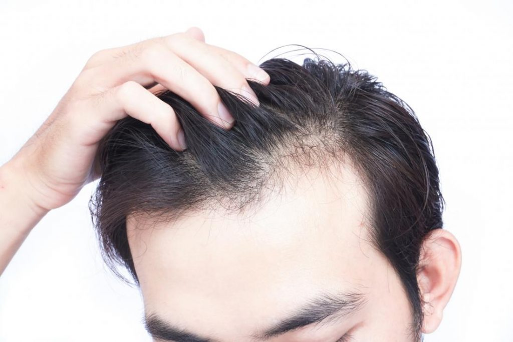 What To Choose Between Hair Transplant & Hair Loss Treatments